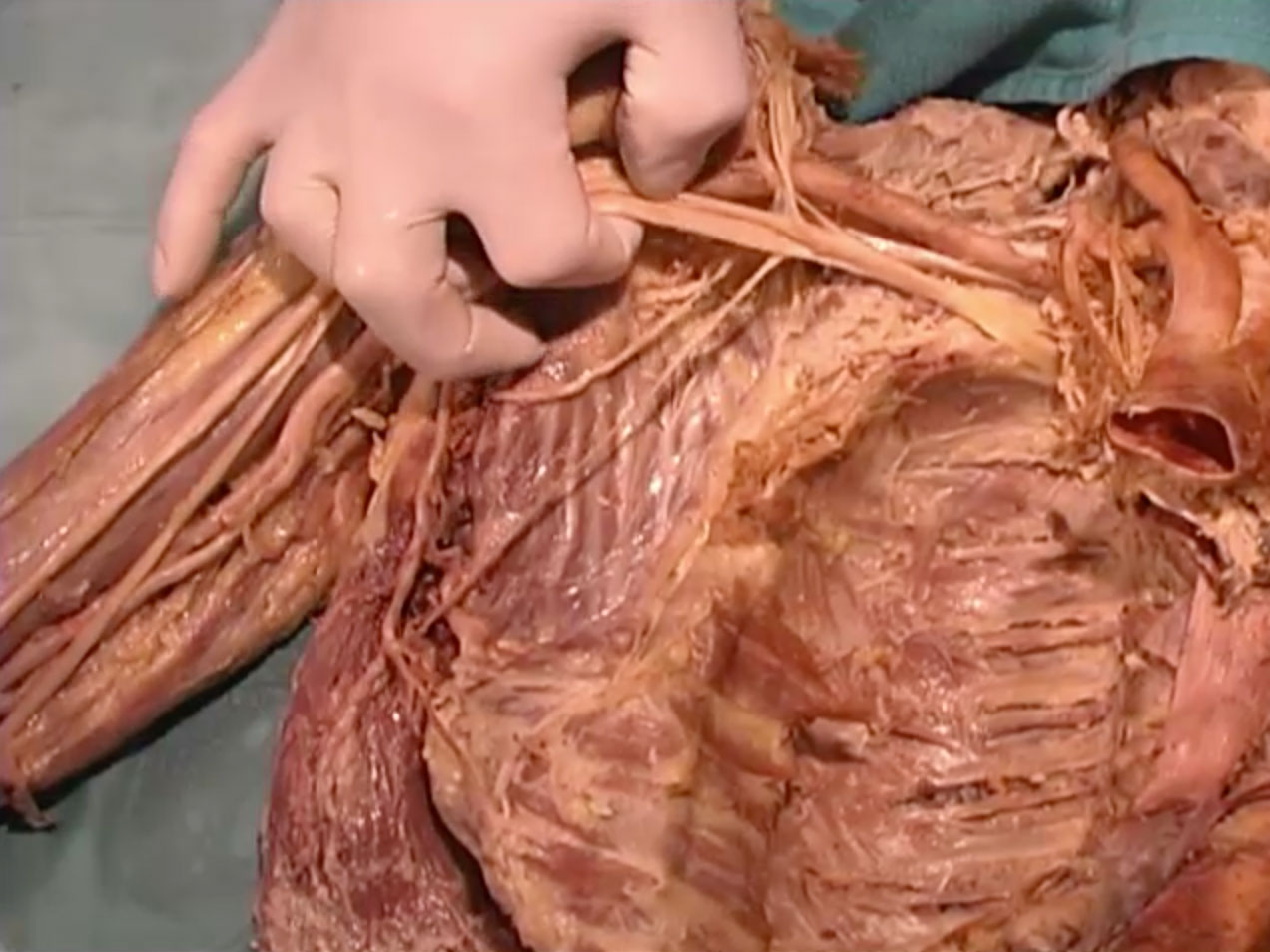 Dissection 17 Cutaneous Veins and Axilla - SMPH Video Library