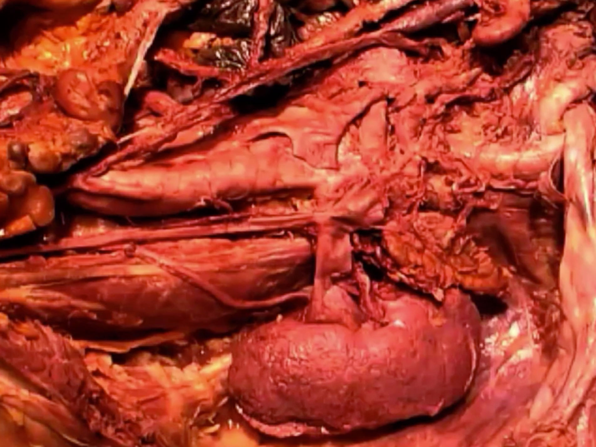 Gross Anatomy Dissections - SMPH Video Library